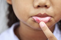 Children with aphtha on lip close up Royalty Free Stock Photography