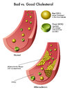 Cholesterol medical illustration of the good and bad Stock Images