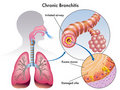 Chronic bronchitis Stock Photography