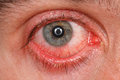 Chronic conjunctivitis eye with a red iris and pus close up Stock Images