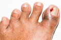 Chronic ingrown toenail toenails are primarily affecting the great caused by sideways growth of the nail edge into the skin of the Royalty Free Stock Photos