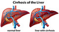 Cirrhosis of the liver poster