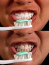 Clean White teeth Stock Photo