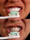 Clean White teeth Stock Photo