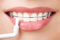 Cleaning teeth with retainer Stock Image