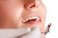 Close up of a dentist at work closeup hands about to do procedure on patient Royalty Free Stock Images