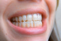 Close up of healthy teeth of young woman. Dental health care. Hy