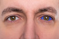 Close up, man with a blue eyeball tattoo Royalty Free Stock Photo