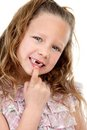Close up portrait of girl showing missing teeth. Royalty Free Stock Photography