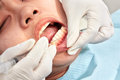 Close up teeth examination denstist patient on taken Stock Images