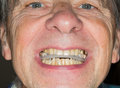 Close up of teeth guard in senior mouth Royalty Free Stock Photo