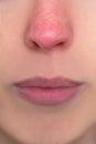 Cerrar hasta mujer nariz alergia o