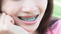 Close up woman smiling with Ceramic and Metal Braces Royalty Free Stock Photo