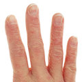 Closeup of eczema dermatitis on fingers back Royalty Free Stock Photography