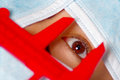 Closeup eye of woman peeking out from total facial cover, preparing for cosmetic surgery concept, doctor using red Royalty Free Stock Photo