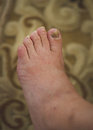 Closeup of a foot with arthritis damaged nails because of fungus and athletes foot Stock Images