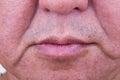 Closeup on saggy cheek skin of matured Asian man Royalty Free Stock Photo