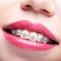 Closeup of woman open smiling mouth with brackets Royalty Free Stock Photo