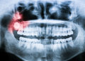 Closeup x ray of impacted wisdom tooth image with pain abstraction in red color Royalty Free Stock Image