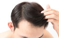 Closeup young man serious hair loss problem for health care sham