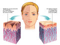 Collagen medical illustration of the role of in the process of skin regeneration Royalty Free Stock Photos