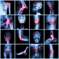 Collection human joint and arthritis and stroke skull head neck shoulder chest thorax shoulder arm elbow forearm wrist hand finger Stock Photography