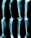 Collection x-ray image Royalty Free Stock Photo