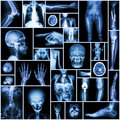 Collection X-ray Royalty Free Stock Photo
