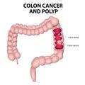 Colon cancer and colon polyps Royalty Free Stock Photo