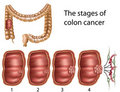 Colon cancer, eps8 Royalty Free Stock Images
