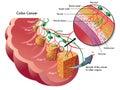 Dvojbodka rakovina