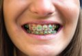 Colored braces closeup of a girl s teeth with Royalty Free Stock Photos