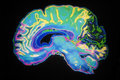 Coloured MRI Scan Of Human Brain Royalty Free Stock Photos