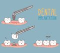 Comics about tooth replacement. Vector
