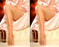 Comparison legs of a woman without and with Royalty Free Stock Photo