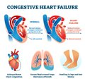 Congestive heart failure vector illustration. Labeled medical compare scheme Royalty Free Stock Photo