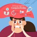Conjunctivitis. Redness and inflammation of the eye. Vessels in the eye.