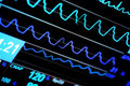 Contemporary icu monitor blue toning Royalty Free Stock Photography