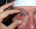 Corneal ulcer close up of the patient during eye examination Royalty Free Stock Photography