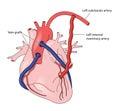 Coronary artery grafts