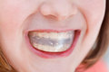 Correction of occlusion by orthodontic trainer child Stock Photography