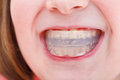 Correction of occlusion by orthodontic trainer children pre Royalty Free Stock Images
