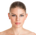 Before and after cosmetic operation Royalty Free Stock Photo
