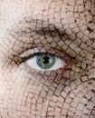 Cracked skin, closeup Royalty Free Stock Photo