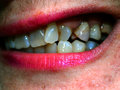 Crooked teeth in the mouth. Orthodontics. Malocclusion.