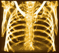 CT of chest bones Royalty Free Stock Photo