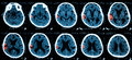 CT scan of the brain. Royalty Free Stock Photo