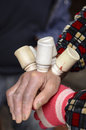 Cupping therapy close up of bottles being applied to hands as part of treatment Royalty Free Stock Photography