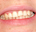 Curvature of the upper dentition Royalty Free Stock Photo