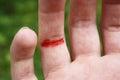 Cut finger Royalty Free Stock Photo